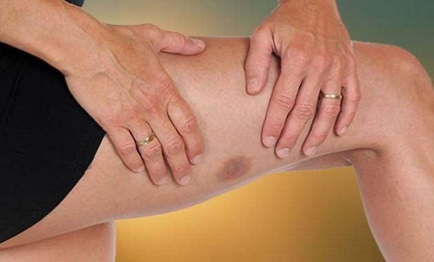 Tanda kanker kulit